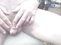 Foreskin - Back